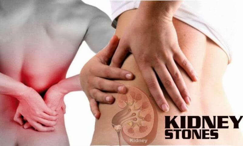 kidney stones removal and a lady body on the side