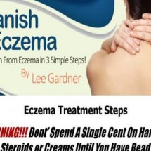 Vanish Eczema Review - Worthy or Scam? Read Before You Buy!