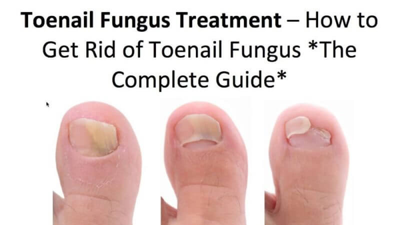 images of toe that is healing from toe nails fungus