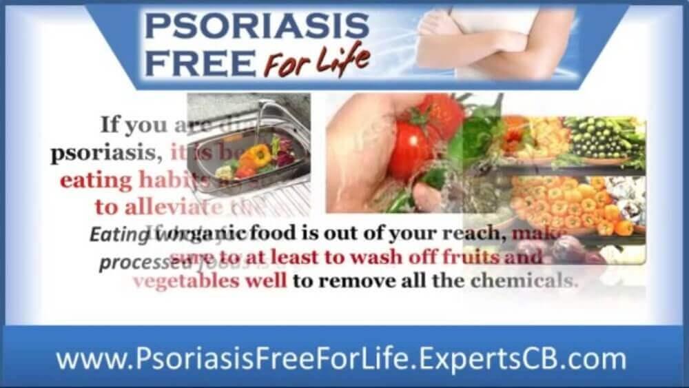 psoriasis review