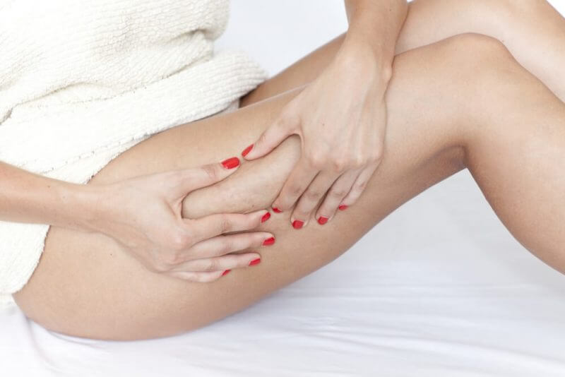 woman checking her legs for cellulite