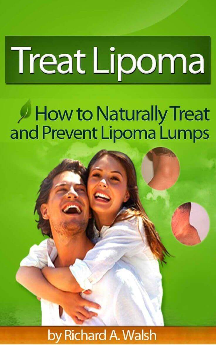 How To Naturally Cure And Prevent Lipoma Lumps Review – Real Shocking Truth!