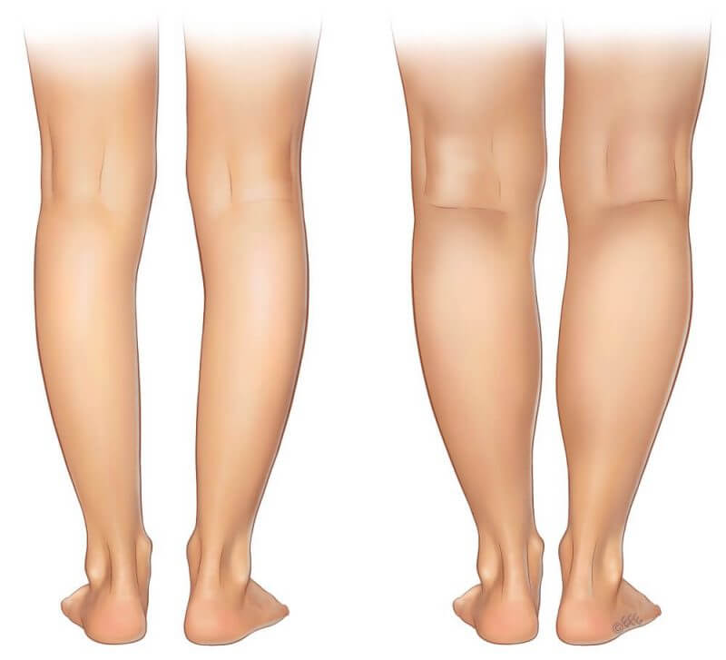 two types of legs in front of a white background