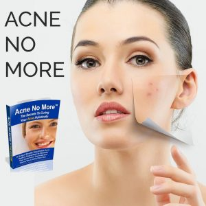 Acne No More Review - Pros, Cons & My Honest Thoughts!