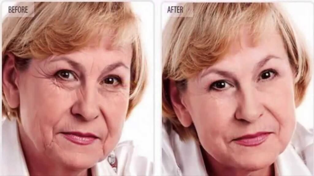 a woman's face showing before and after