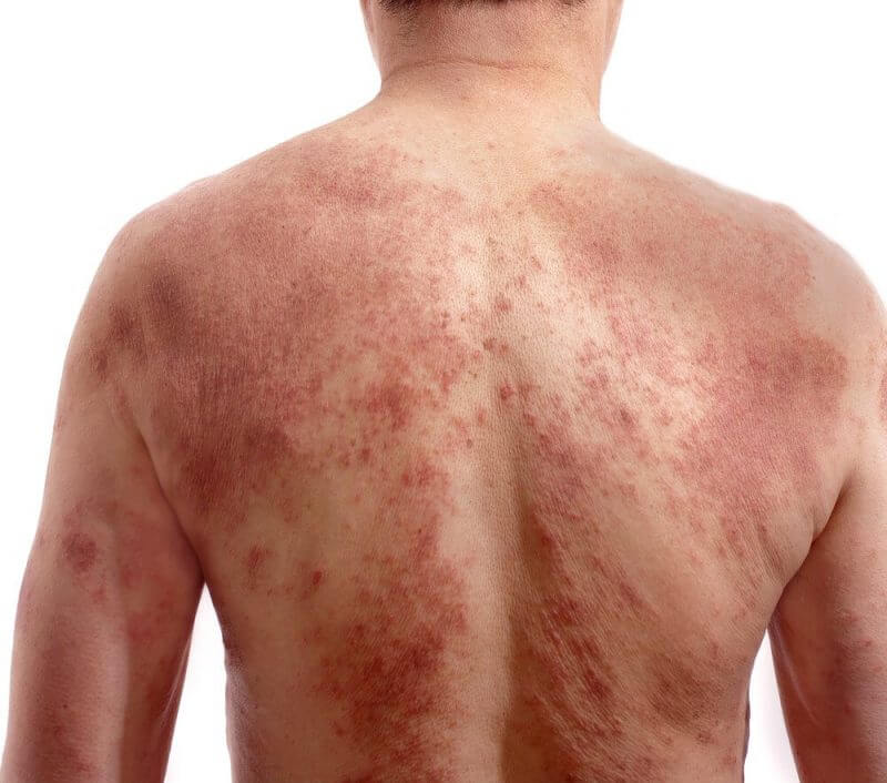 a man's back infected by yeast