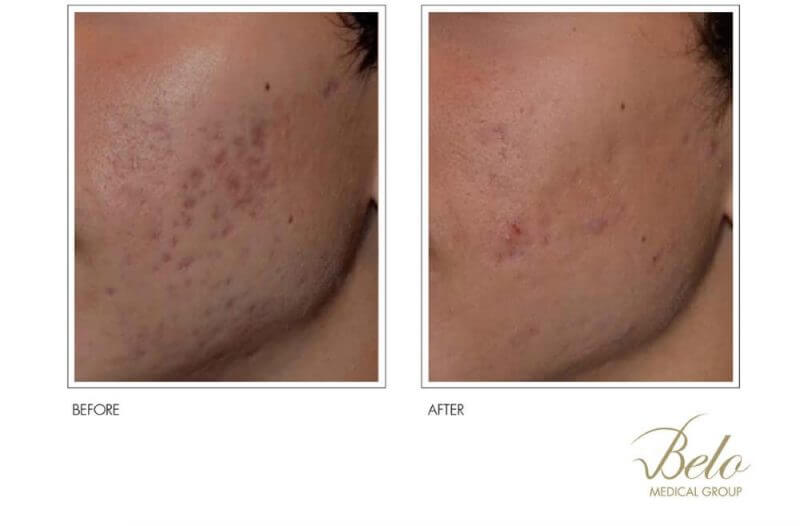 showing before and after acne scar removal