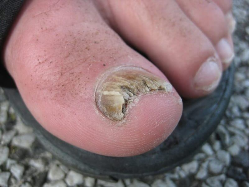 fungus in toes