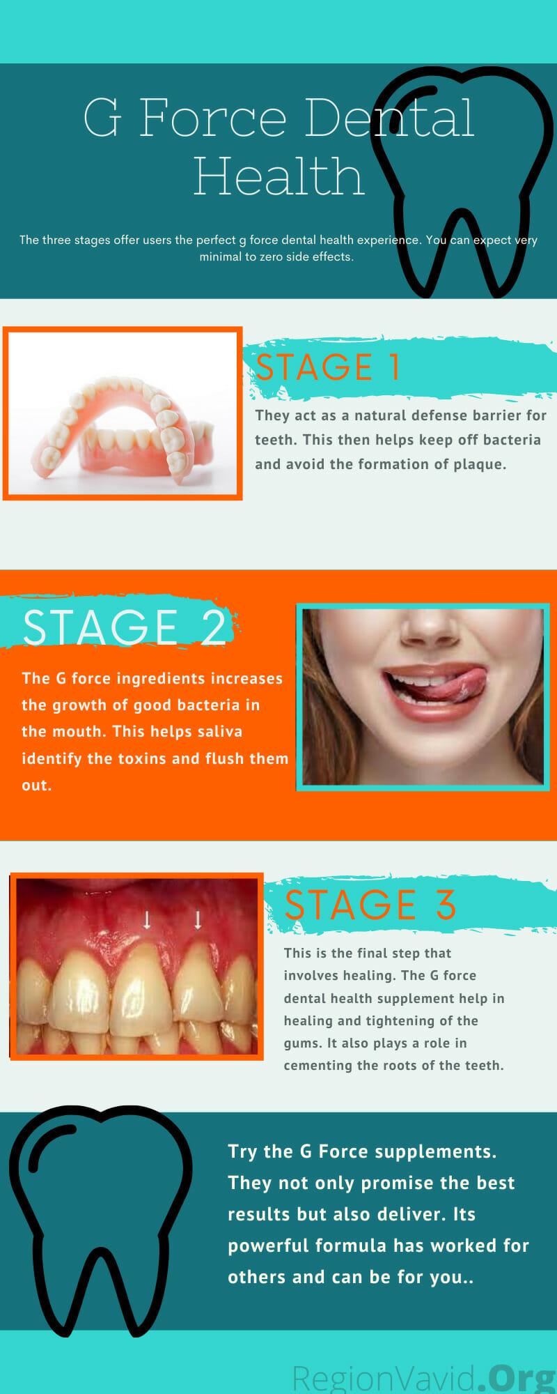 GForce Dental Health Stage