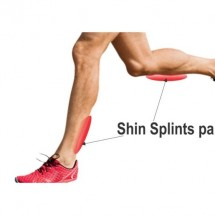 Stop Shin Splints Forever Review - Should You Really Buy It?