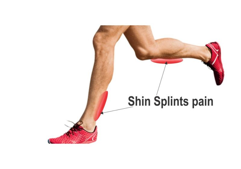 Stop Shin Splints Forever