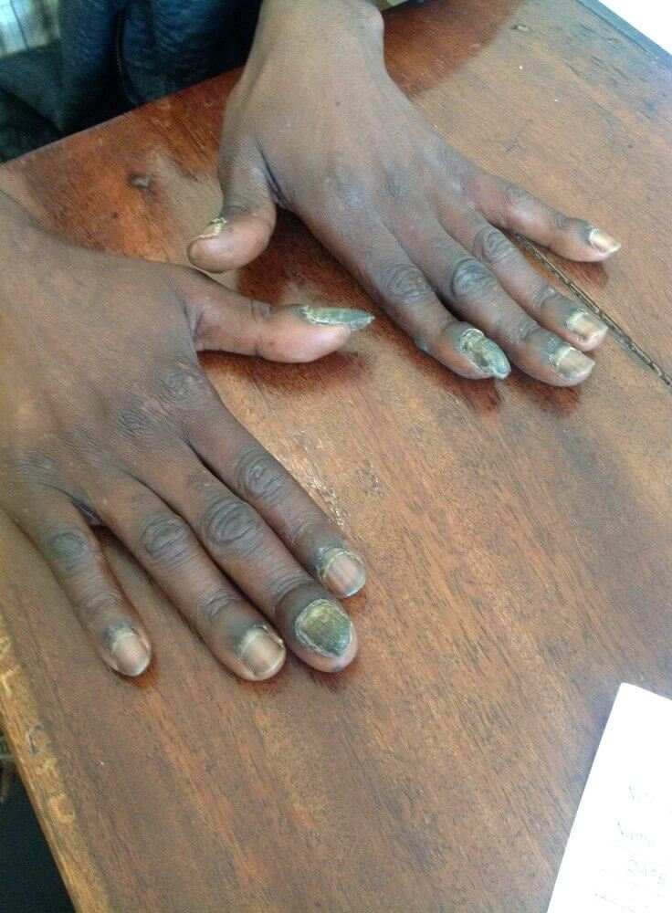 a person suffering from fingernails fungus