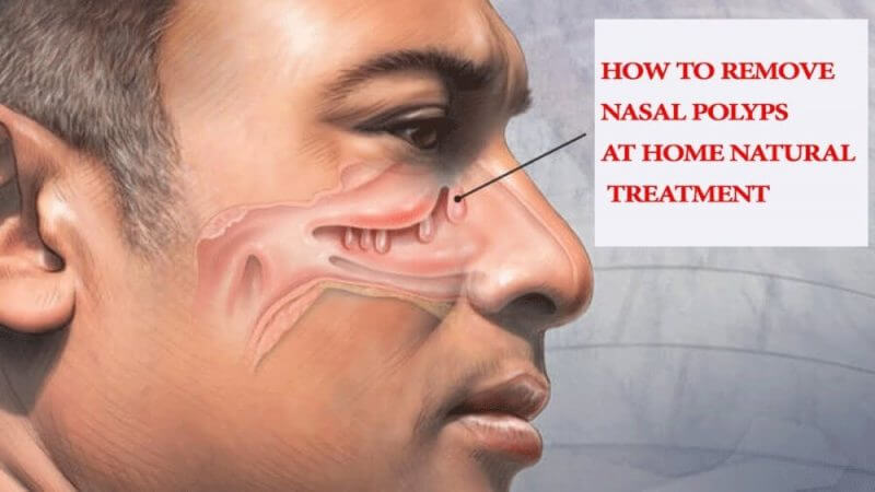 how to remove nasal polyps at home natural treatment