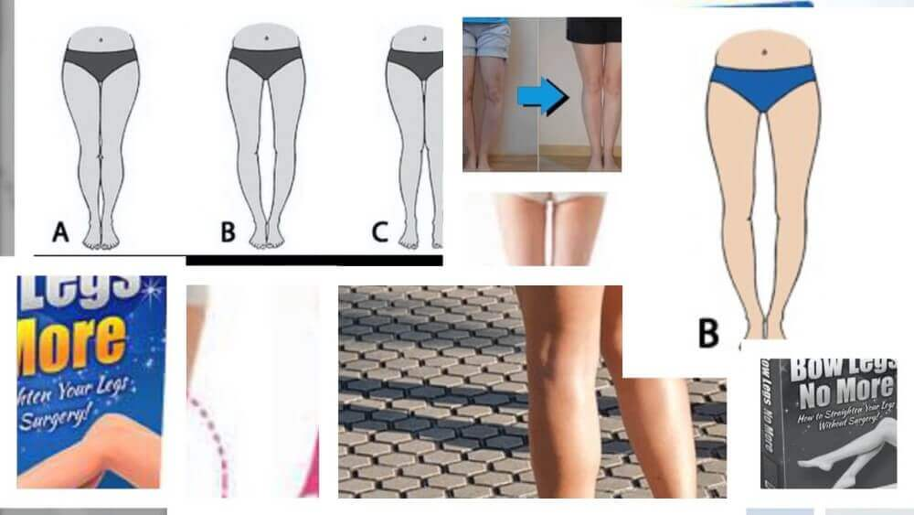 bow legs no more review with different leg shapes