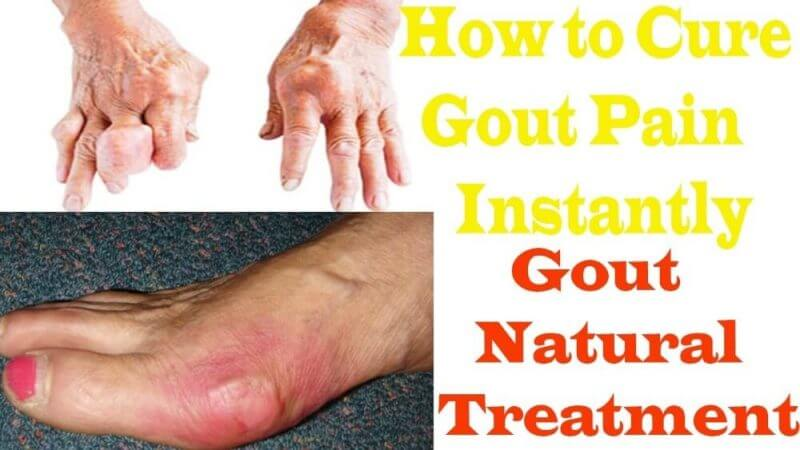 how to cure gout pain instantly gout natural treatment