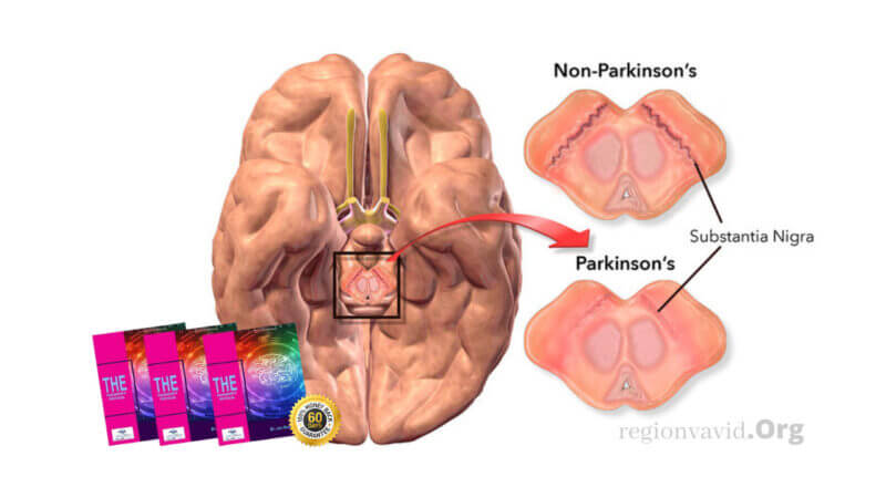 The Parkinson's Protocol What it looks like