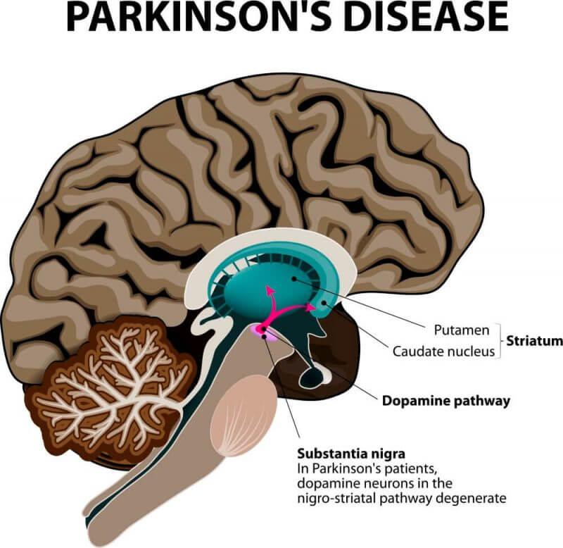 parkinson's disease demonstration
