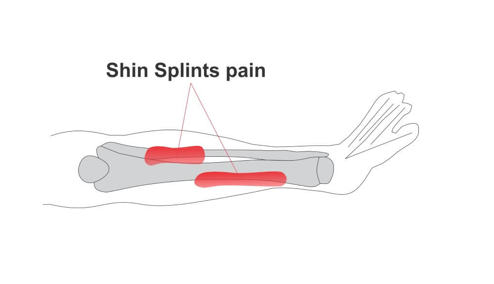 shin spplints pain
