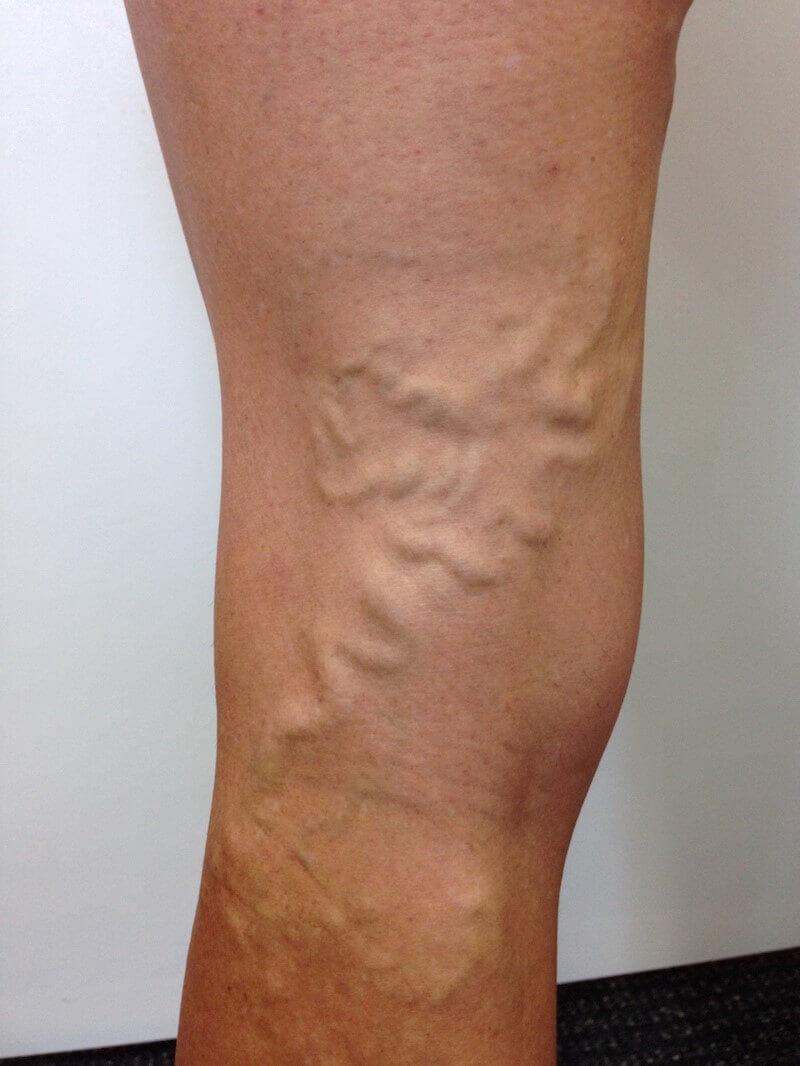 leg with varicose veins