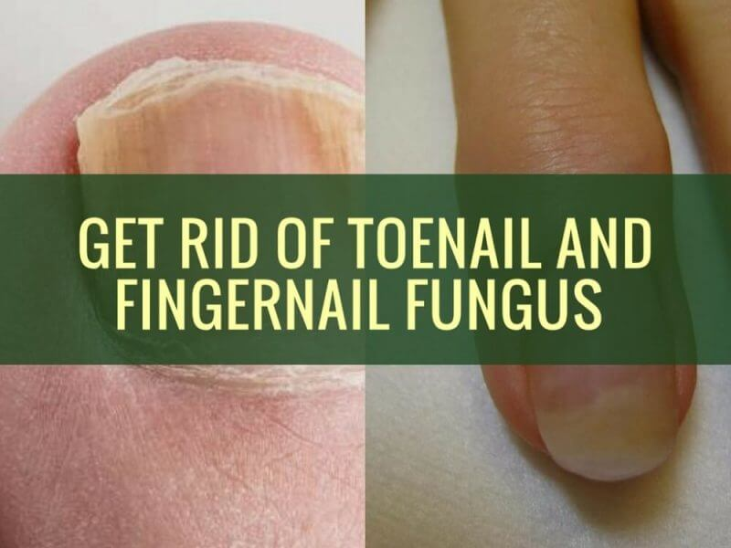 description on how to get rid of toe and fingernail fungus