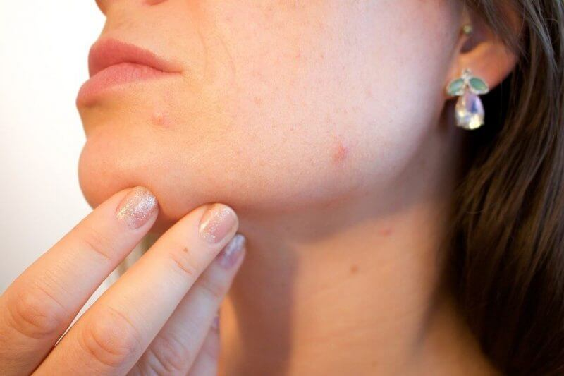 Fast Chicken Pox Cure Review – Works or Just a SCAM?