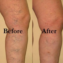 Varicose Veins Secrets Review - Works or Just a SCAM?