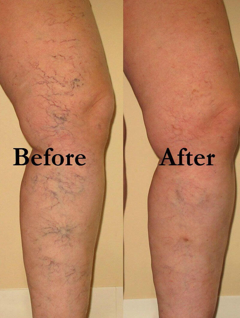 Varicose Veins Secrets Review – Works or Just a SCAM?