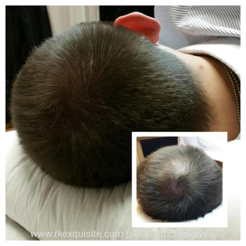 man's head with hair loss
