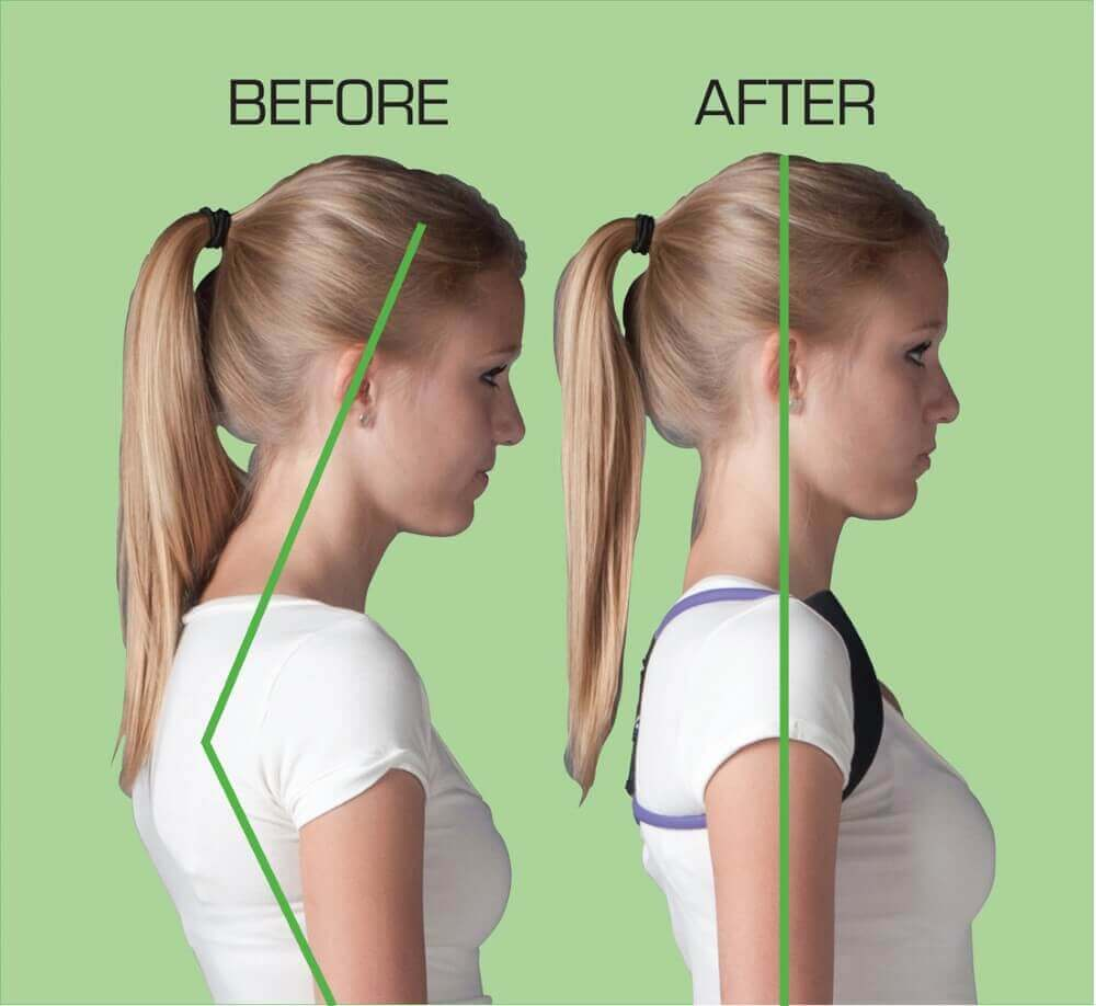 two neck posture being shown by a lady