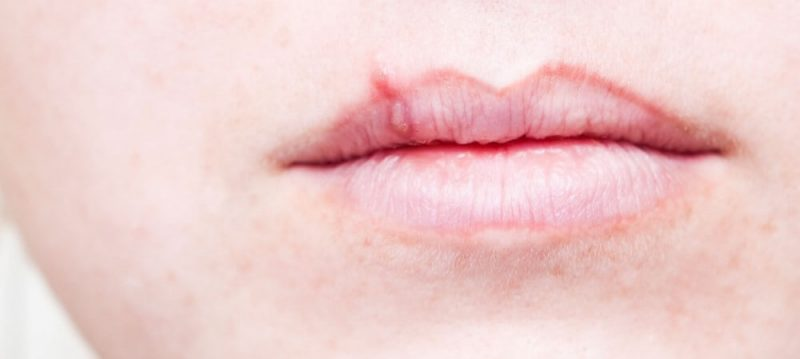 lips suffering from code sore
