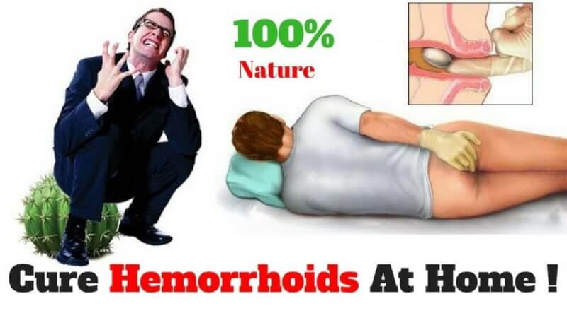 cure hemorrhoids at home