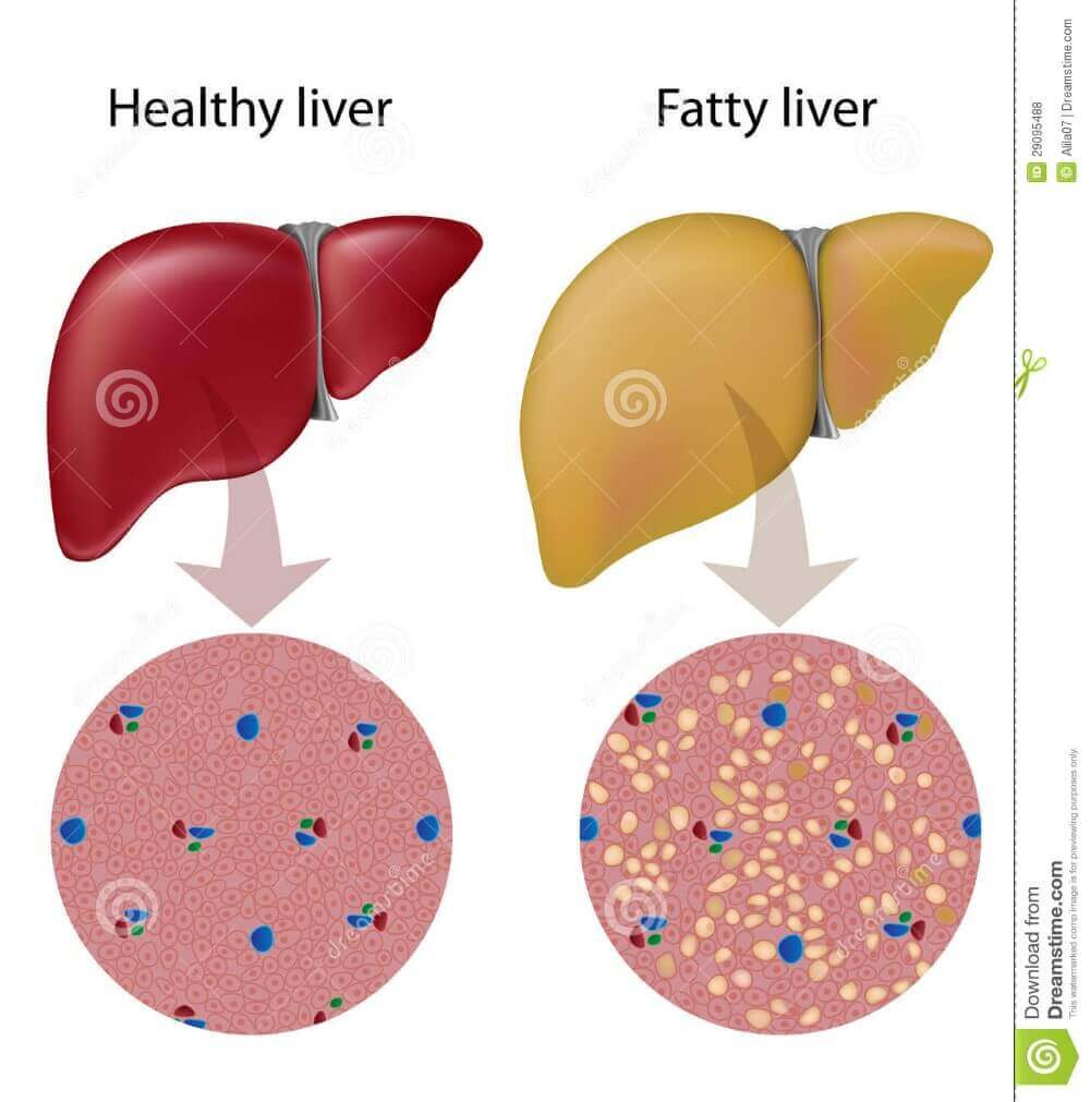 a healthy and fatty liver