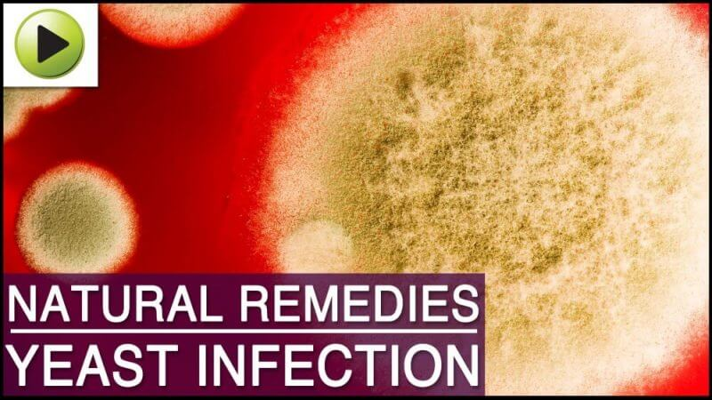natural remedies yeast infection