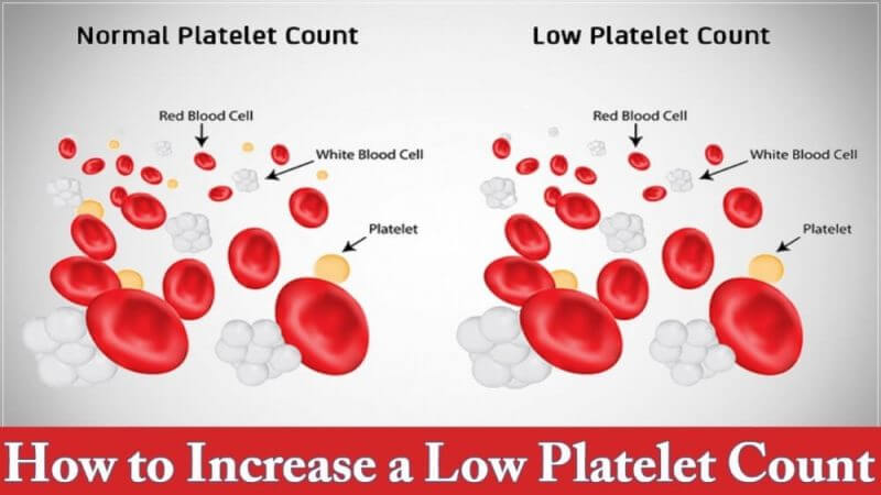 how to increase a low platelets count