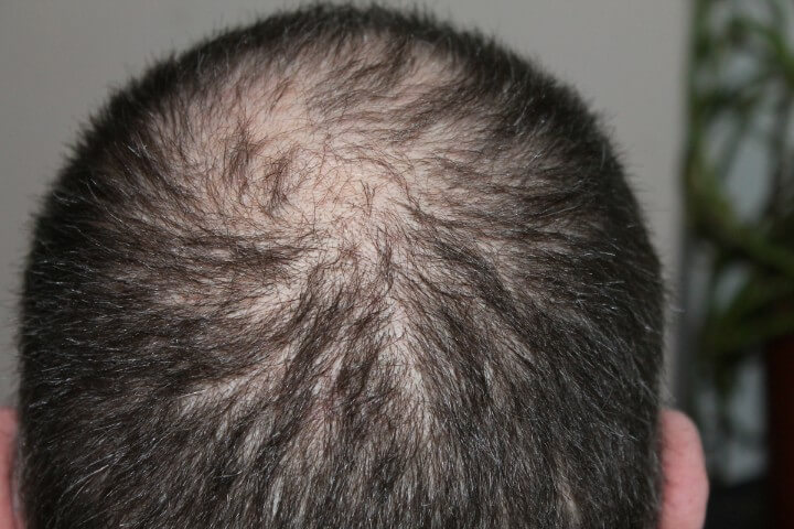 The Rebuild Hair Program hair loss