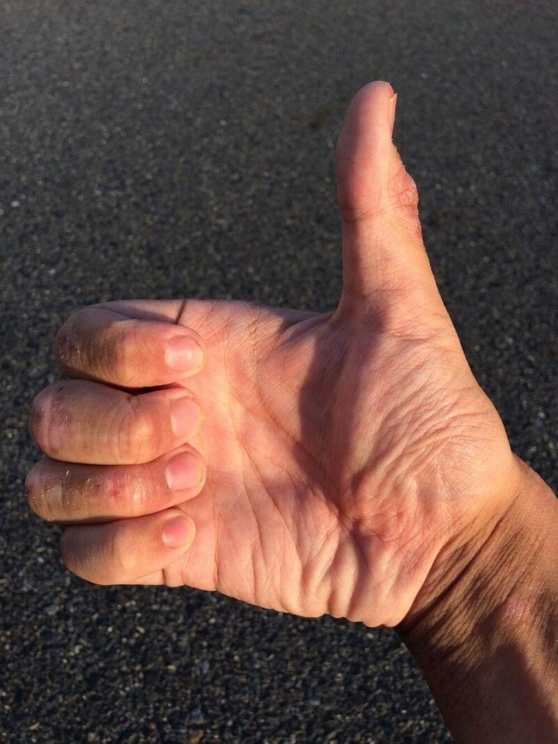 someone lifting his thumb up