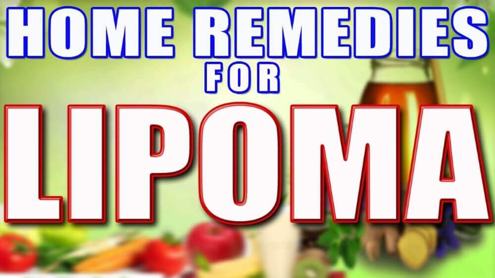 How To Cure Lipoma Naturally