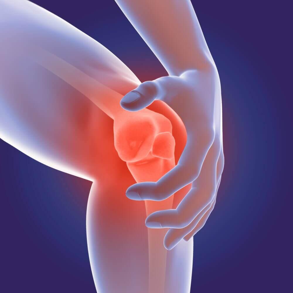 3D Render of Osteoarthritis - rheumatoid arthritis in the human knee joint