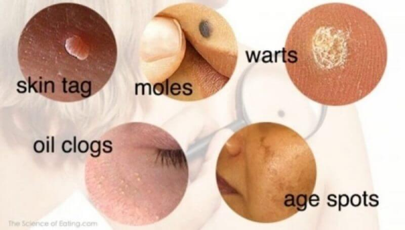 mmoles,warts nd skin tags