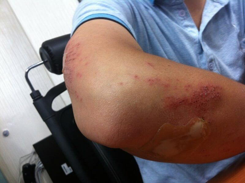 man showing injured elbow