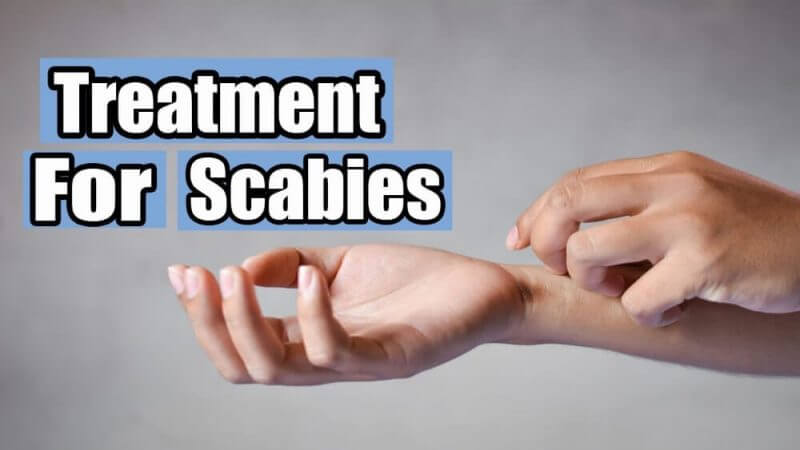 treatment for scabies