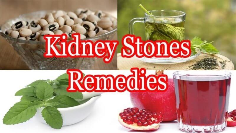 kidney stones remedes