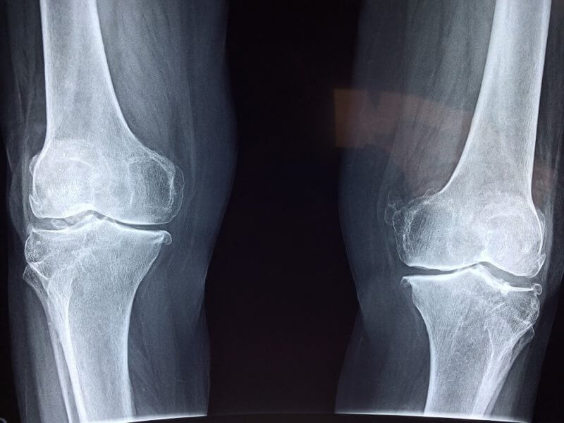 skeletal images of knees