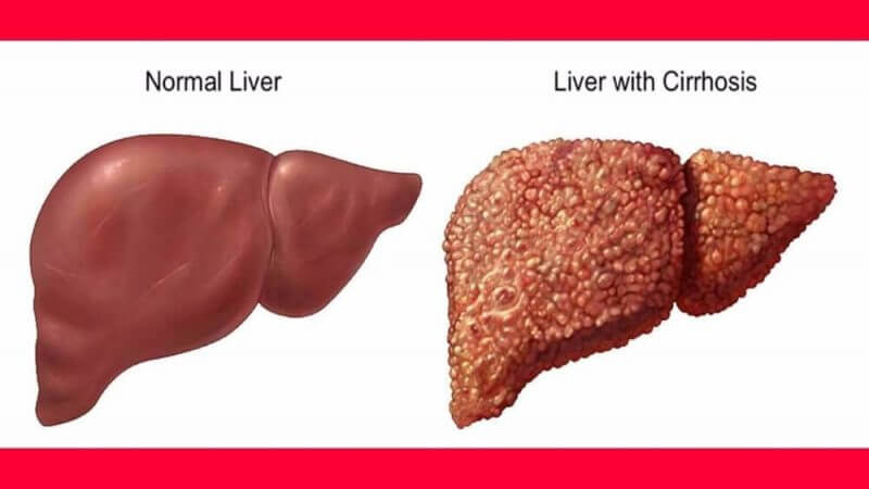 two types of liver