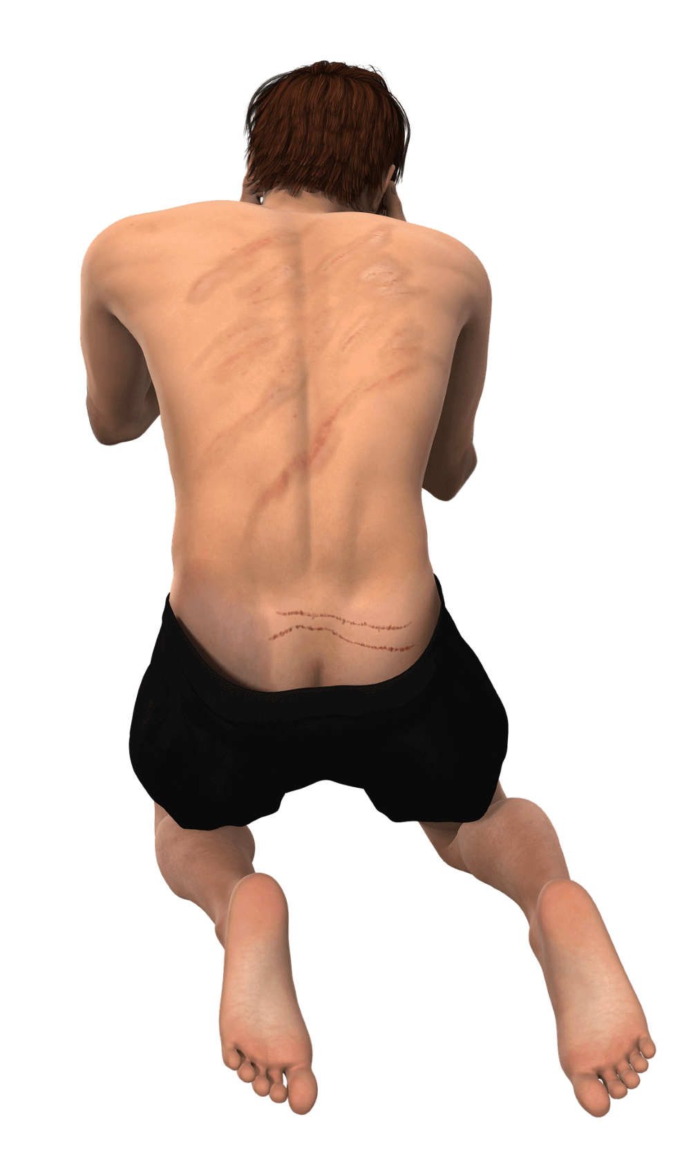 bruses on the man's back