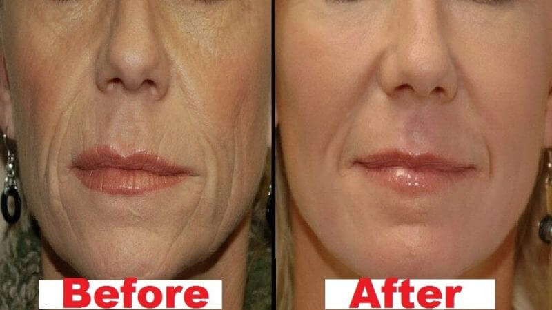 before and after wrinkles are gone from the face