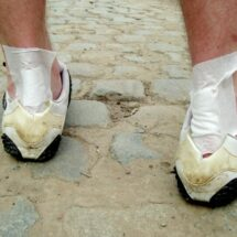 Plantar Fasciitis Relief In 7 Days Review - What You Must Know Before You Buy!