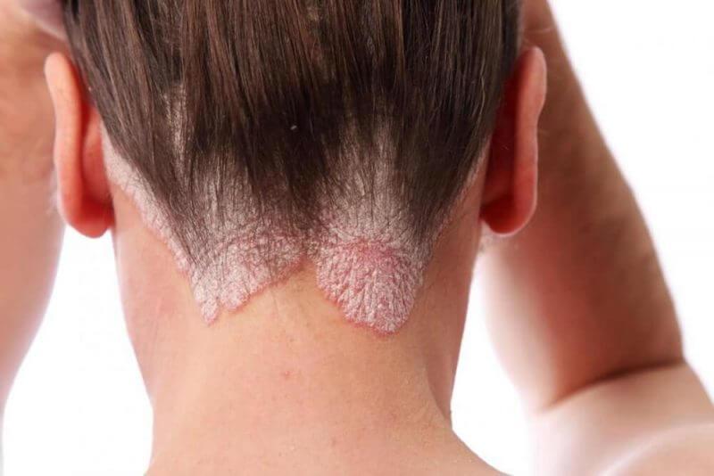 psoriasis-scalp