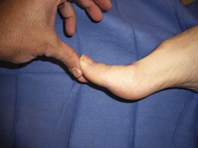 gout leg