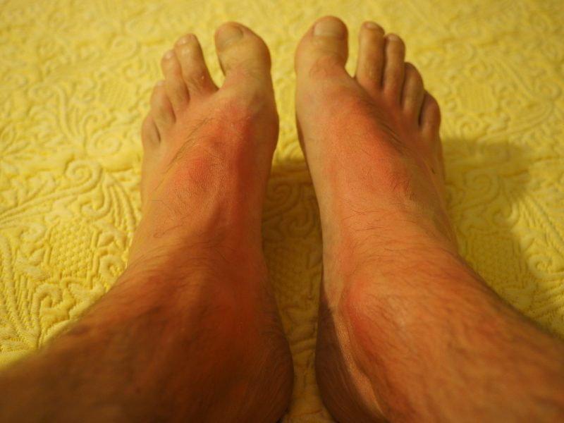 side effect of gout